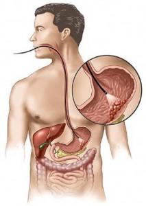 лучевая диагностика рака желудка