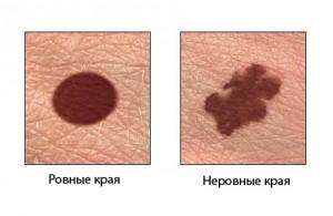 удаление меланомы лазером