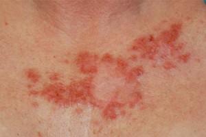 Лечения рака кожи