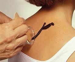 физиотерапия при мастопатии фото