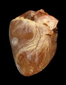 лечение опухоли сердца