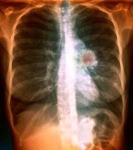 периферический рак легкого история болезни