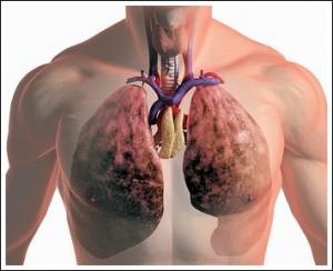 снимок легких при раке
