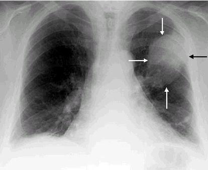 снимок легких при раке на флюорографии