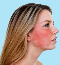 базалиома кожи лица лечение