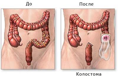 недифференцированный рак желудка миниатюра