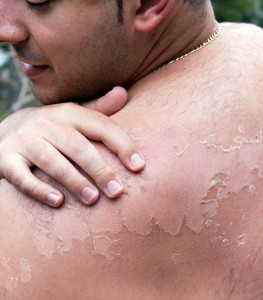 рак кожи первые признаки фото
