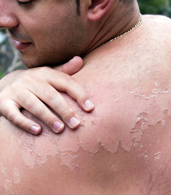 Первые симптомы и признаки рака кожи