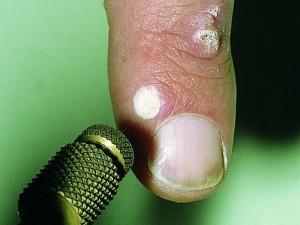 как лечить вирус папилломы человека
