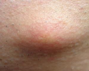липома на спине болит фото