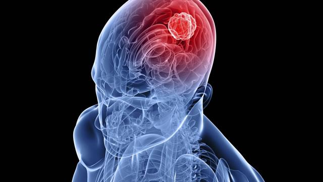 метастазы в головном мозге миниатюра