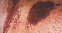 Саркома Капоши: симптомы и особенности развития