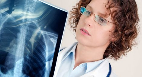Скопление легочной жидкости при раковых заболеваниях