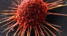 Нетрадиционная медицина уменьшает шансы онкобольных на выживание