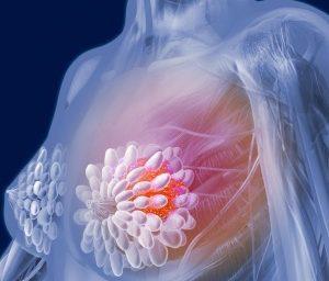 Обнаружена связь между типом фигуры и развитие рака у женщин