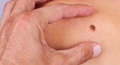 6 главных факторов, провоцирующих меланому