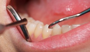 Разновидности рака зуба